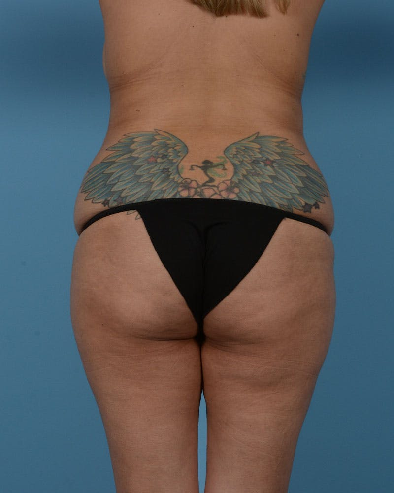 Mommy Makeover Gallery - Patient 33741749 - Image 15