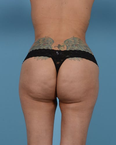 Mommy Makeover Gallery - Patient 33741749 - Image 16