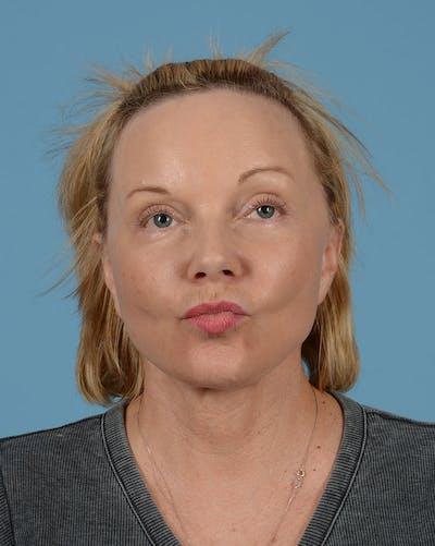 Facelift Gallery - Patient 33747857 - Image 4