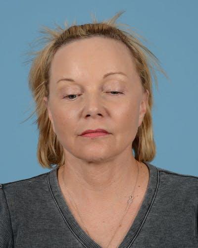 Facelift Gallery - Patient 33747857 - Image 8