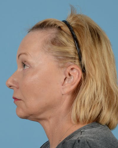Facelift Gallery - Patient 33747857 - Image 12
