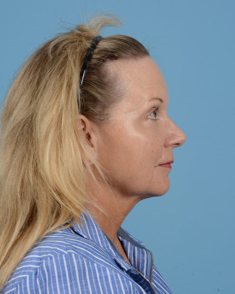 Facelift Gallery - Patient 33747857 - Image 13