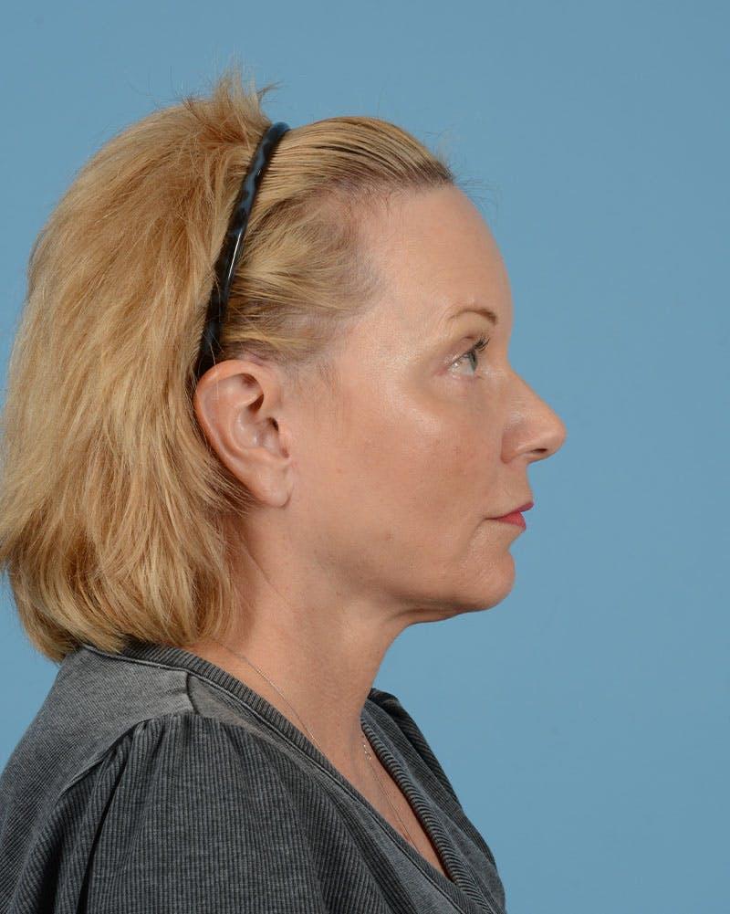 Facelift Gallery - Patient 33747857 - Image 14