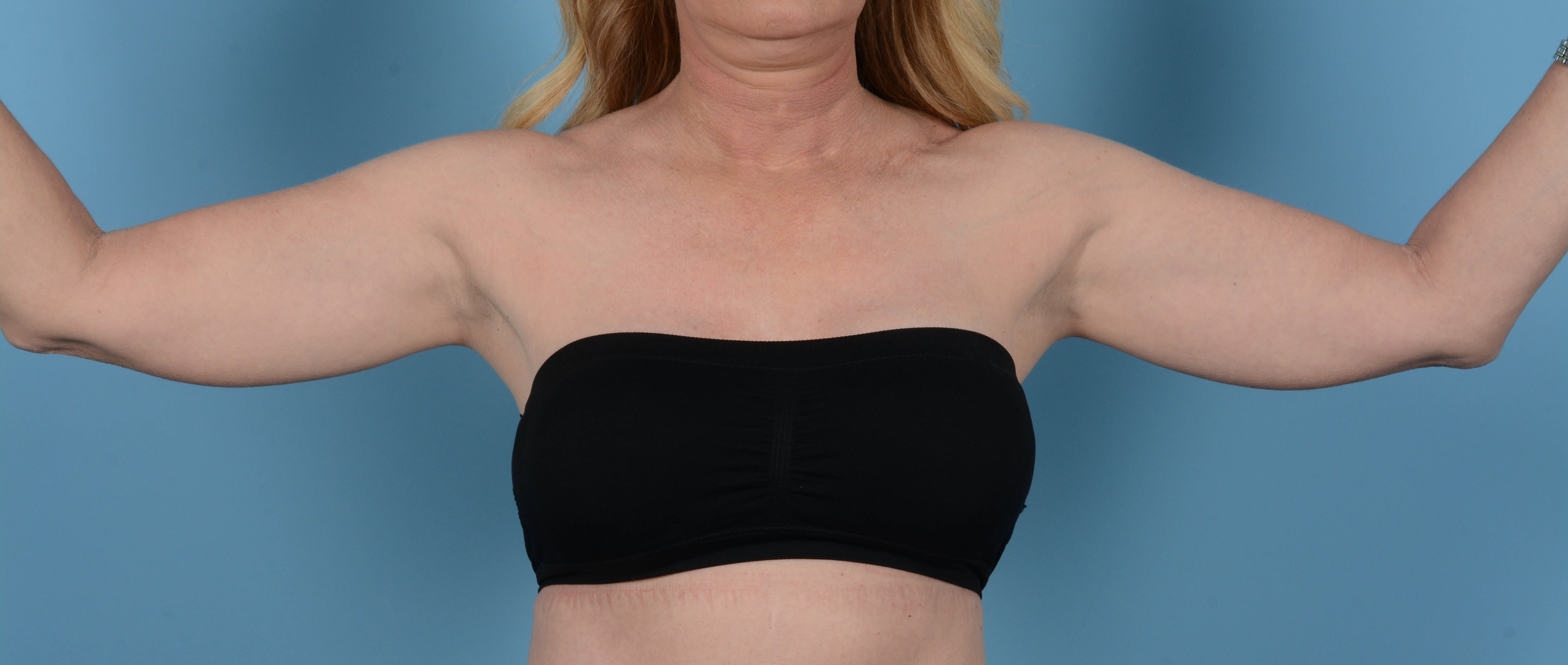 Liposuction Gallery - Patient 33798956 - Image 1