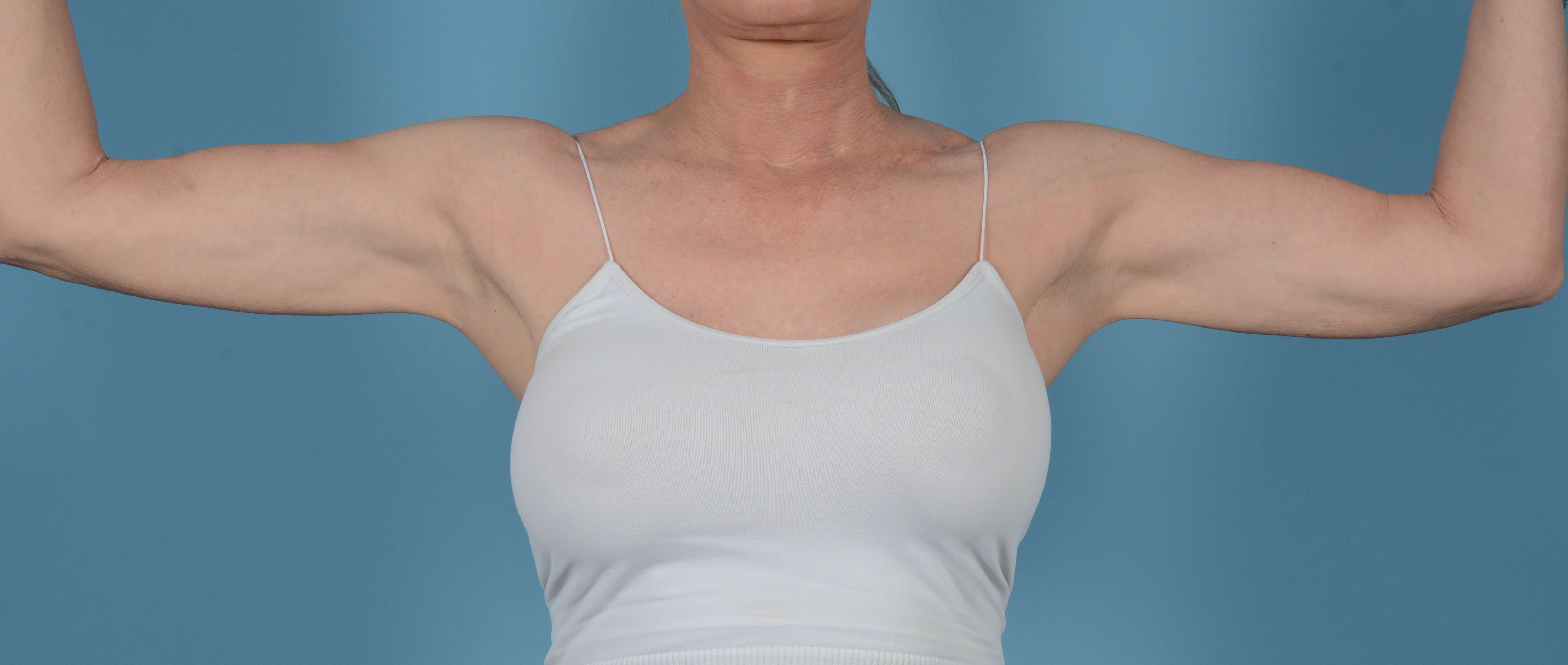 Liposuction Gallery - Patient 33798956 - Image 2