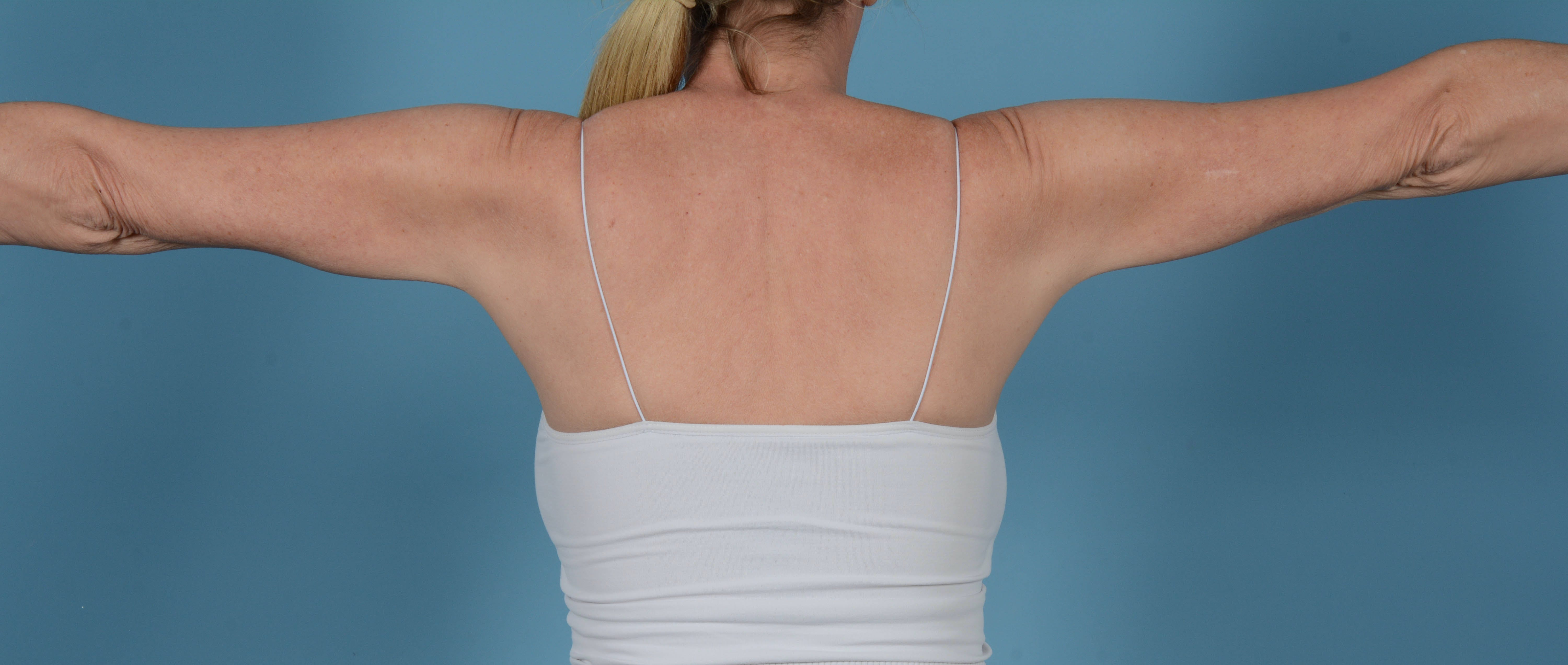 Liposuction Gallery - Patient 33798956 - Image 4
