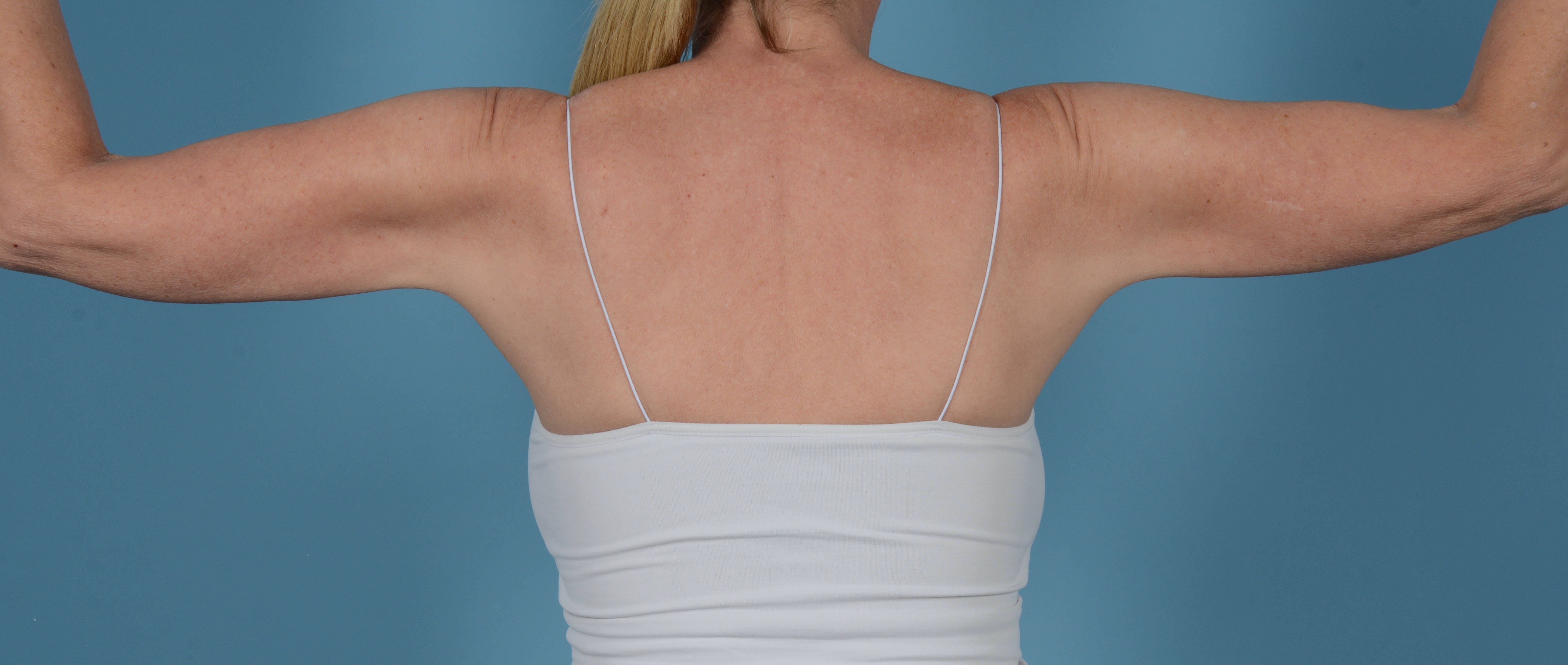 Liposuction Gallery - Patient 33798956 - Image 6