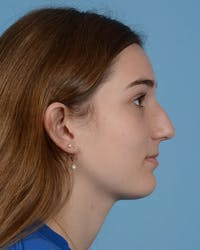 Rhinoplasty Gallery - Patient 33817283 - Image 1