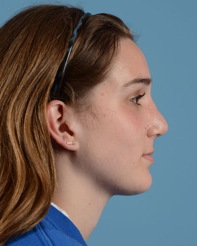 Rhinoplasty Gallery - Patient 33817283 - Image 2
