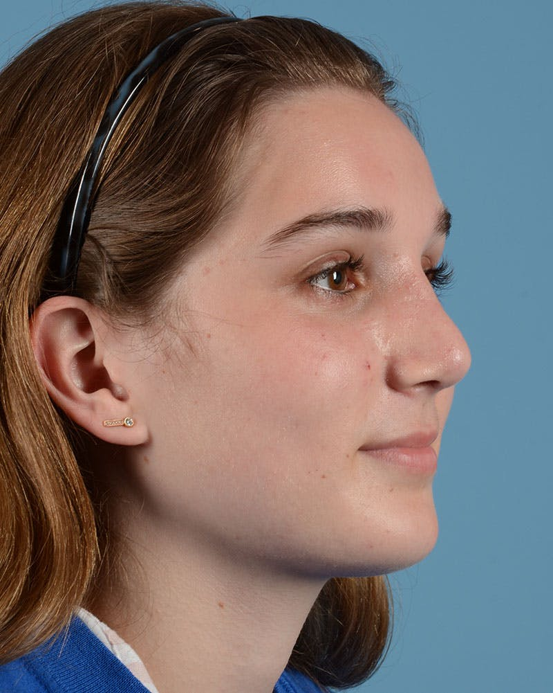 Rhinoplasty Gallery - Patient 33817283 - Image 6