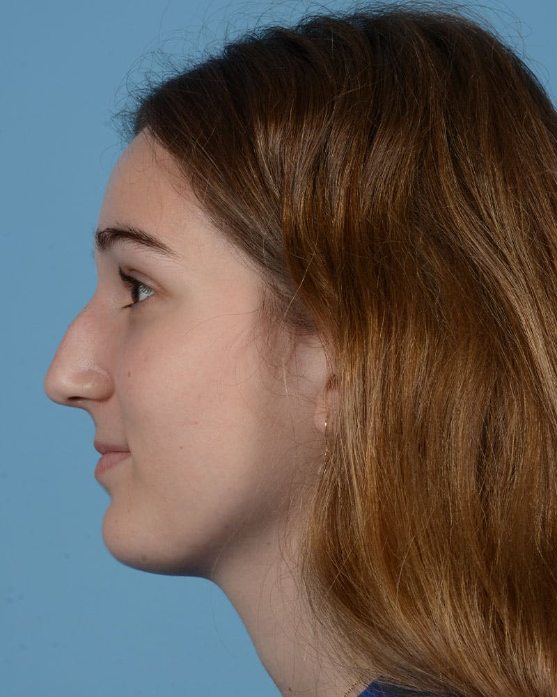 Rhinoplasty Gallery - Patient 33817283 - Image 9
