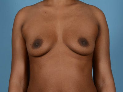 Breast Augmentation Gallery - Patient 33817475 - Image 1