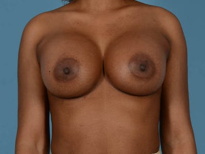 Breast Augmentation Gallery - Patient 33817475 - Image 2