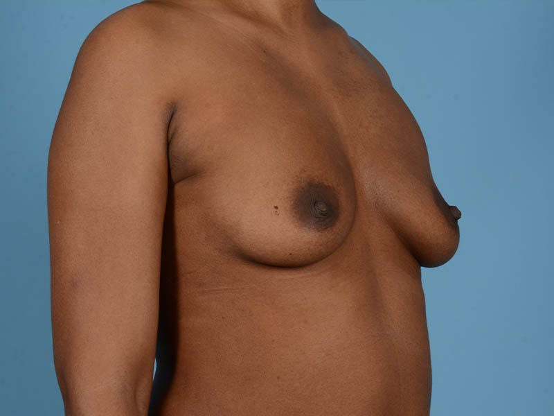 Breast Augmentation Gallery - Patient 33817475 - Image 3