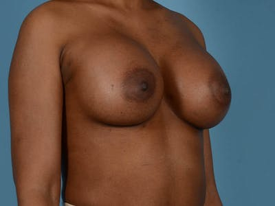 Breast Augmentation Gallery - Patient 33817475 - Image 4