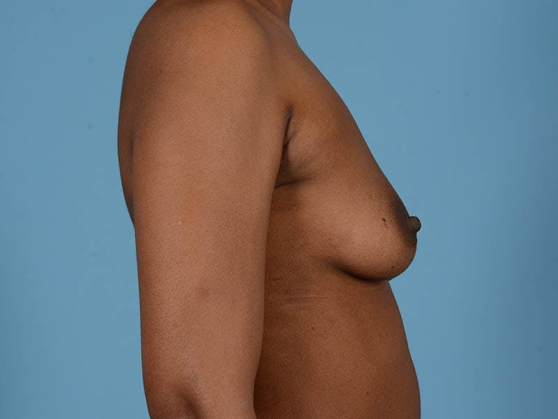Breast Augmentation Gallery - Patient 33817475 - Image 5