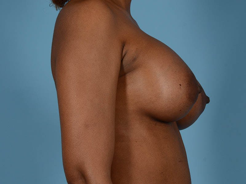Breast Augmentation Gallery - Patient 33817475 - Image 6