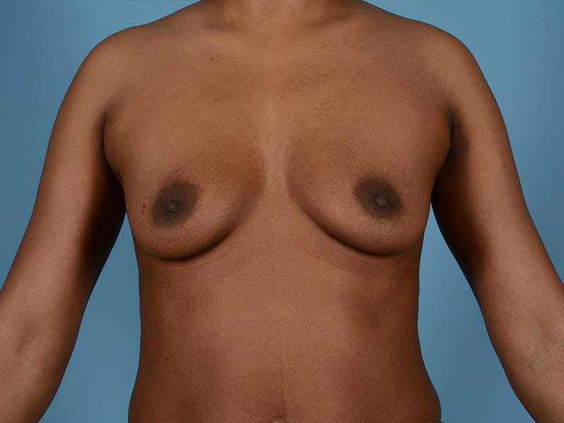 Breast Augmentation Gallery - Patient 33817475 - Image 7