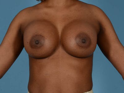 Breast Augmentation Gallery - Patient 33817475 - Image 8