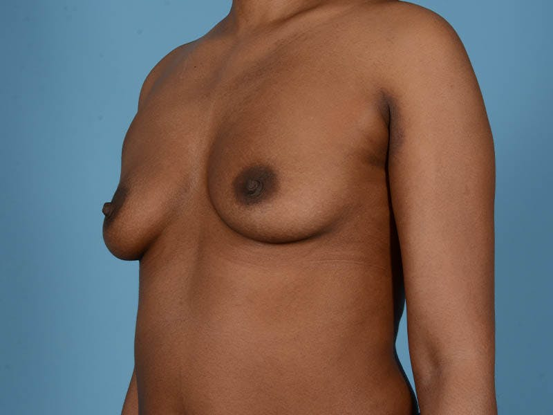 Breast Augmentation Gallery - Patient 33817475 - Image 9