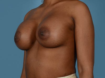 Breast Augmentation Gallery - Patient 33817475 - Image 10
