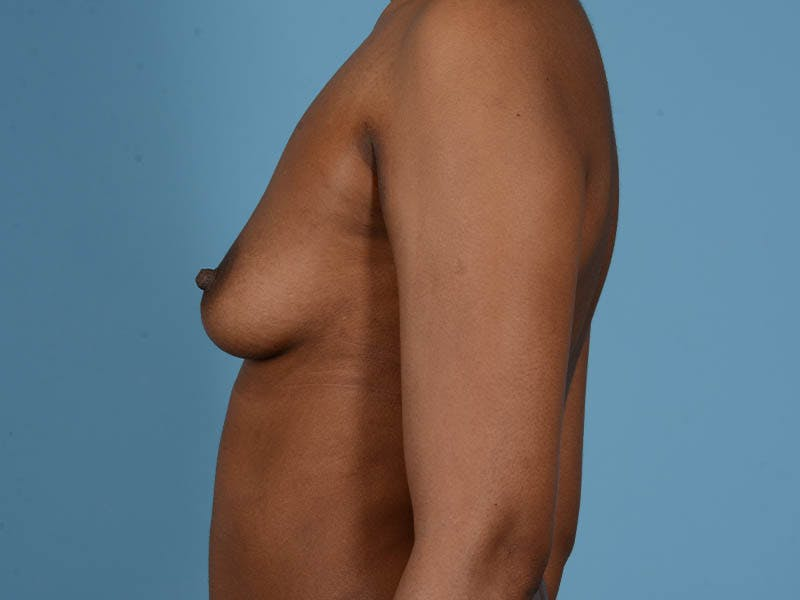 Breast Augmentation Gallery - Patient 33817475 - Image 11