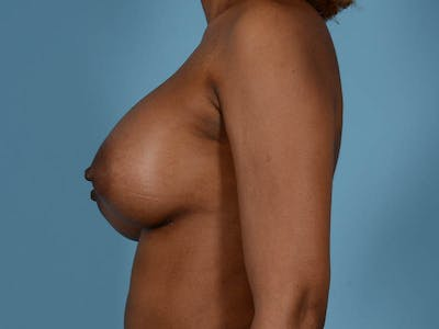 Breast Augmentation Gallery - Patient 33817475 - Image 12