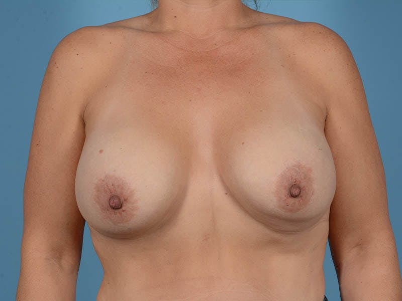 Breast Augmentation Gallery - Patient 33817476 - Image 1