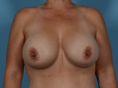 Breast Augmentation Gallery - Patient 33817476 - Image 2