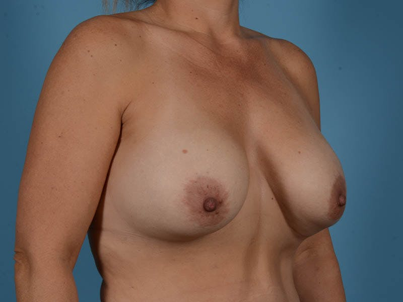 Breast Augmentation Gallery - Patient 33817476 - Image 3