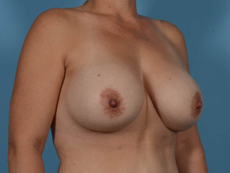 Breast Augmentation Gallery - Patient 33817476 - Image 4