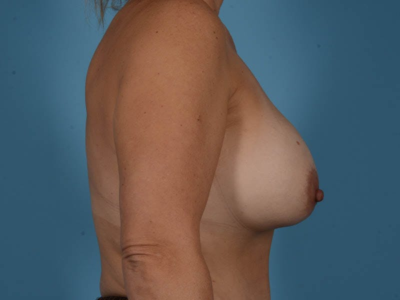 Breast Augmentation Gallery - Patient 33817476 - Image 5