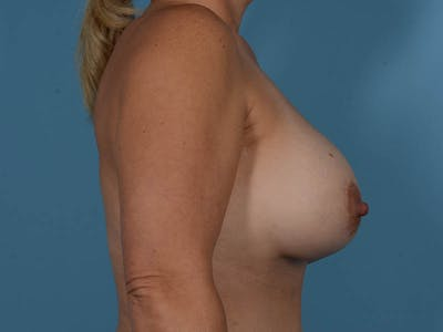 Breast Augmentation Gallery - Patient 33817476 - Image 6