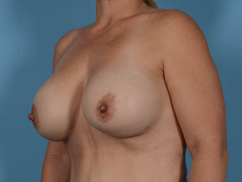 Breast Augmentation Gallery - Patient 33817476 - Image 8