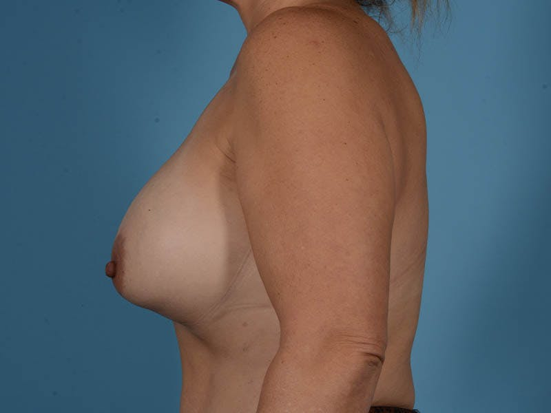 Breast Augmentation Gallery - Patient 33817476 - Image 9