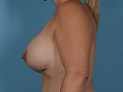 Breast Augmentation Gallery - Patient 33817476 - Image 10