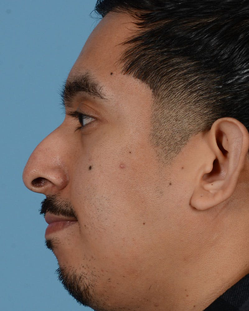 Rhinoplasty Gallery - Patient 33817630 - Image 3