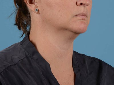 Liposuction Gallery - Patient 33823829 - Image 1
