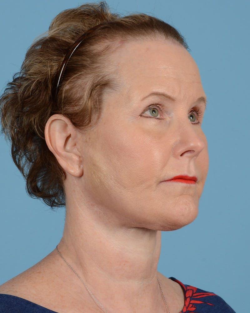 Facelift Gallery - Patient 39173697 - Image 4