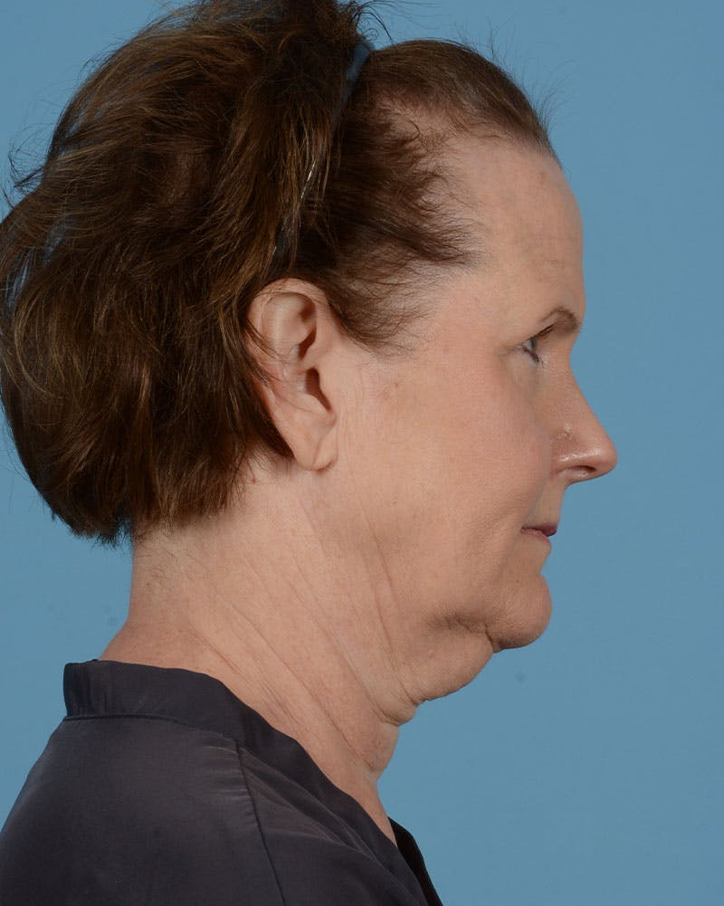 Facelift Gallery - Patient 39173697 - Image 5