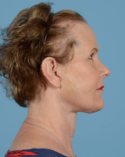 Facelift Gallery - Patient 39173697 - Image 6