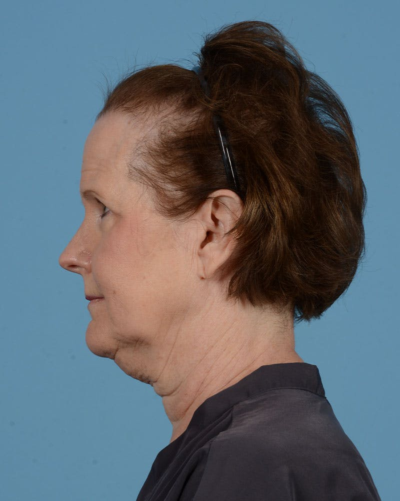 Facelift Gallery - Patient 39173697 - Image 7