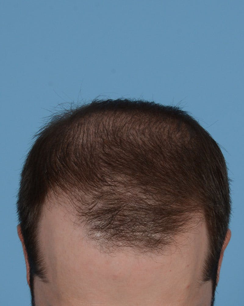 Hair Transplant Gallery - Patient 39174174 - Image 1