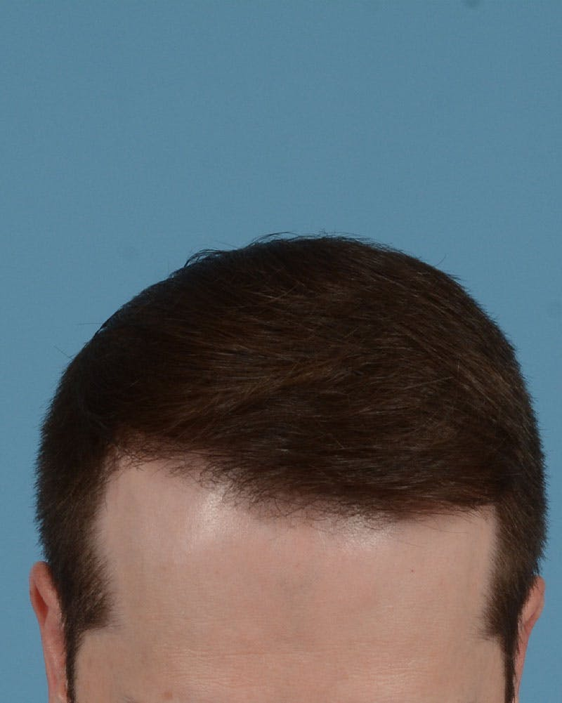 Hair Transplant Gallery - Patient 39174174 - Image 2