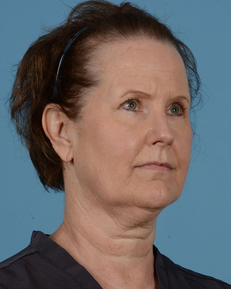 Eyelid Lift Gallery - Patient 39182754 - Image 3