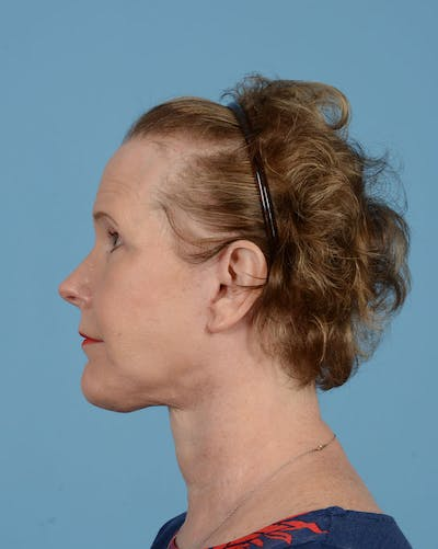 Eyelid Lift Gallery - Patient 39182754 - Image 8