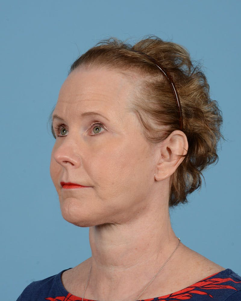 Eyelid Lift Gallery - Patient 39182754 - Image 10