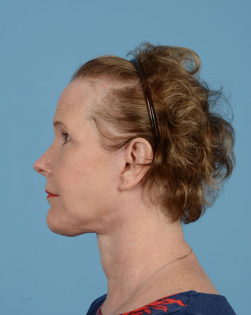 Laser Skin Resurfacing Gallery - Patient 39191222 - Image 8
