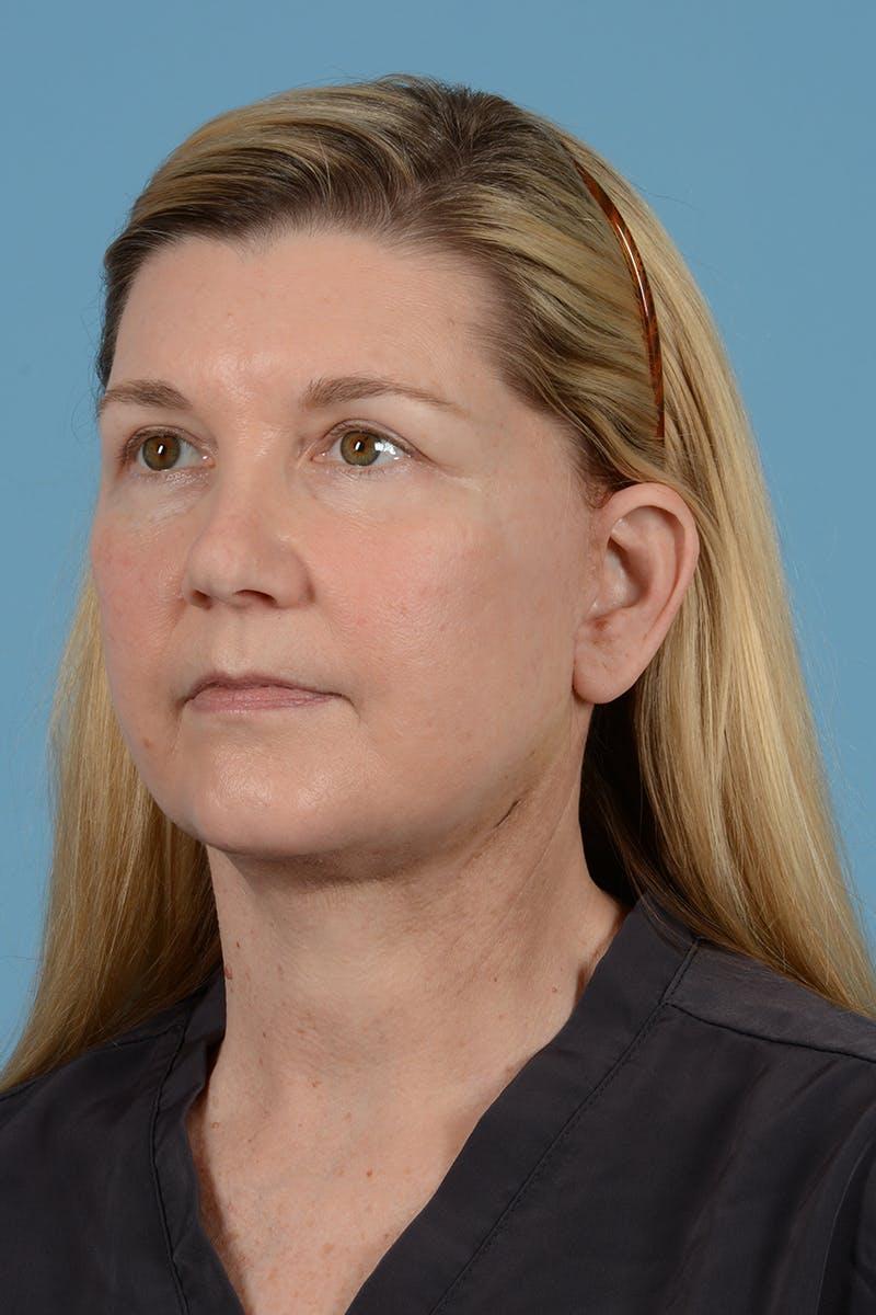 Brow Lift Gallery - Patient 52535493 - Image 8