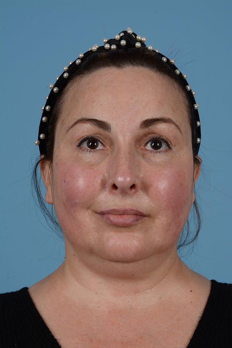 Facelift Gallery - Patient 52643815 - Image 3